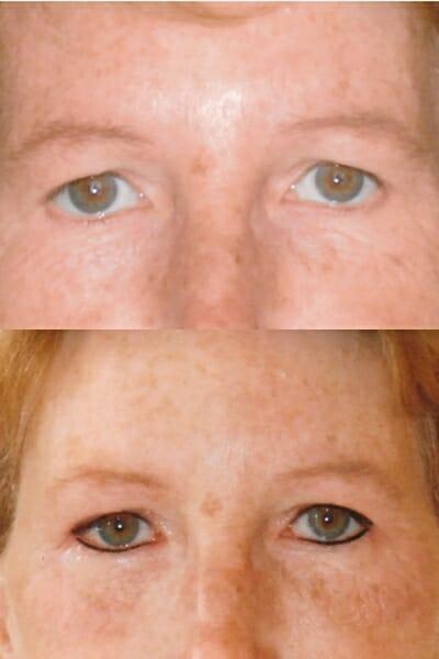 Permanente Make-up Eyeliner boven en onder