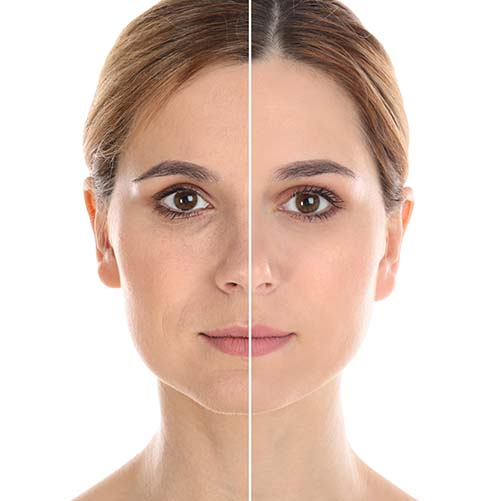 Symmed geeft direct anti-aging effect