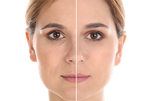 Symmed verjongingskuur geeft direct anti-aging effect - Wellness-Esthetiek Nele Bekegem